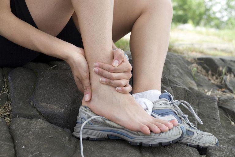 Ayakabı dışına çıkan bir ayağ ve Ayak bilek kireçlenmesi olan Artroz'un yerini gerçek bir insan bedeninde gösteren görsel.