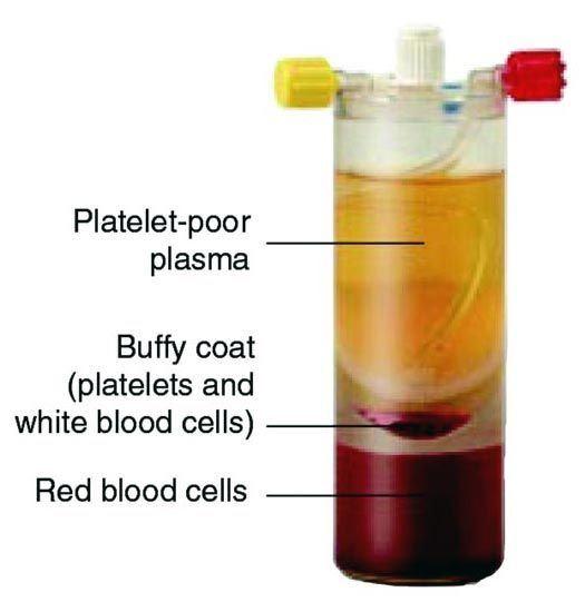 Platelet-poor plasma - Buffy Coat ve Kırmızı kan hücrelerini gösteren bir tüp. Opr. Dr. Halil Buldu