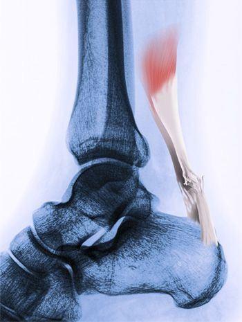 Aşil Tendon'un bulunduğu ayak bileğinin MR  altında ki görünütüsü - Opr. Dr. Halil Buldu.