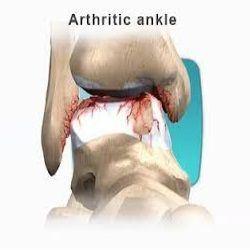 Ayak Bileği kireçlenmesinin sebep olan kısımların kemiksel yapılarını gösteren görsel. - Opr. Dr. Halil Buldu