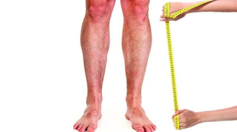 Metre ile bacak boyunu ölçen bir resim - Opr. Dr. Halil Buldu
