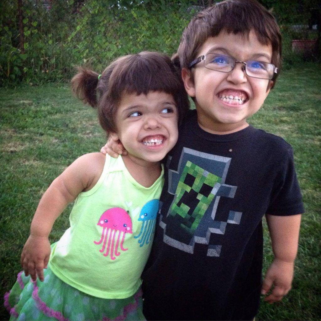 Cücelik sorunu çeken iki yetişkin insan fotoğrafı - Opr. Dr. Halil Buldu