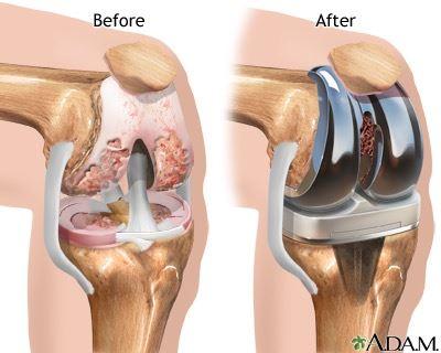 Diz protezi öncesi ve sonrası durumu analtan bilimsel bir görsel. Opr. Dr. Halil Buldu