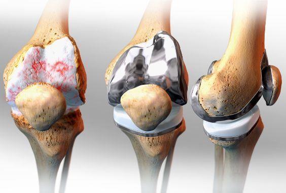 Niye diz protezi ameliyatı yapılması gerektiğini ve Diz protezinin kemikte takıldığı yerleri resmeden bir görsel. Opr. Dr. Halil Buldu