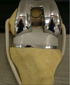 Diz protezinin kemikte takıldığı yerleri önizleyen bir görsel. Opr. Dr. Halil Buldu