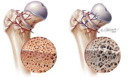 Bu görsel, Femur Başı Avasküler Nekrozu gerçekleşen kemik yapısını açıklamaktadır. Opr. Dr. Halil Buldu