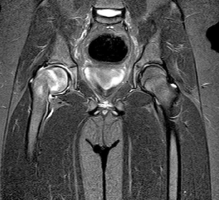 MRI Altında Femur Başı Epifiz Kayması'nın görüntülenmesi Opr. Dr. Halil Buldu.