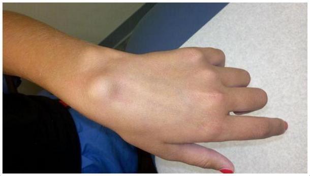 Ganglion Kisti'nin nasıl olduğunun el üzerinde gösterildiği görsel Opr. Dr. Halil Buldu