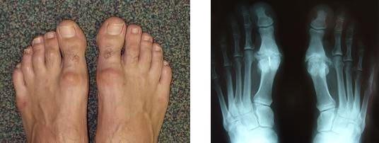 Halluks Valgus'un gerçek ayak üzerinde ve MR üzerinde ki gösterilişi Opr Dr. Halil Buldu