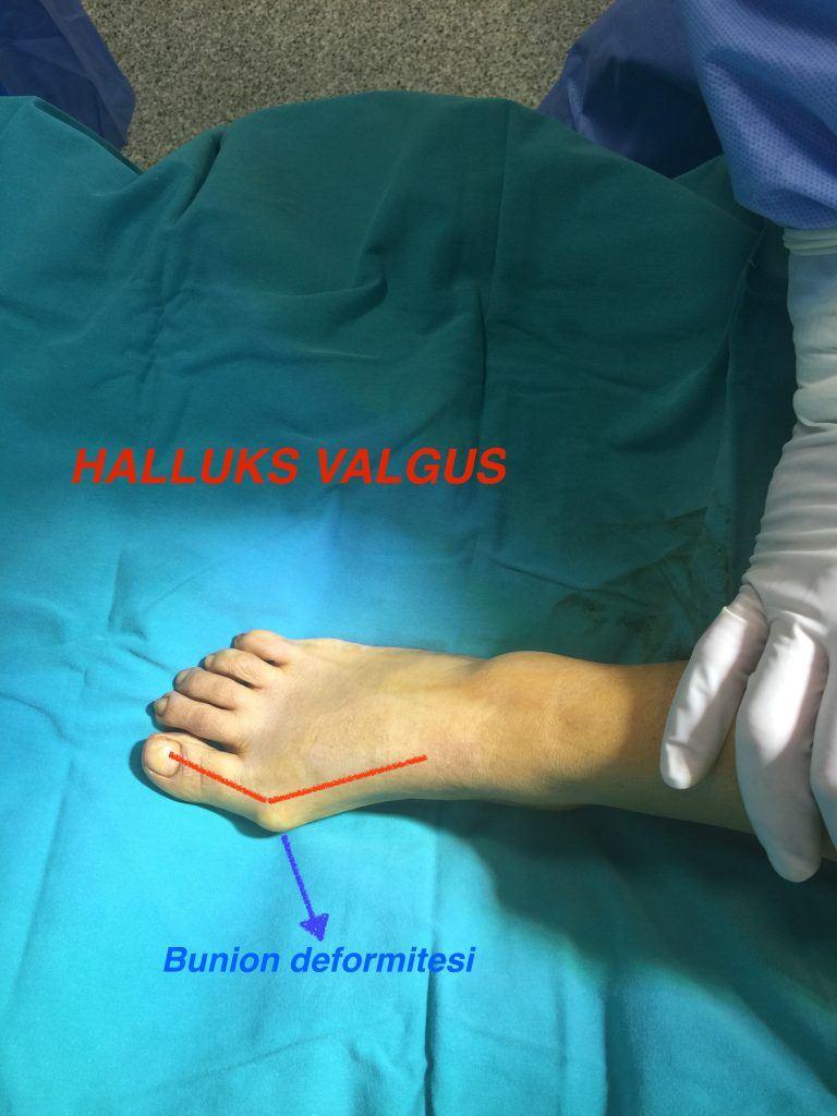 Gerçek bir ayak üzerinde Halluks Valgus hastalığının ve ayağın bükülmesinin gösterilmesi Opr. Dr. Halil buldu