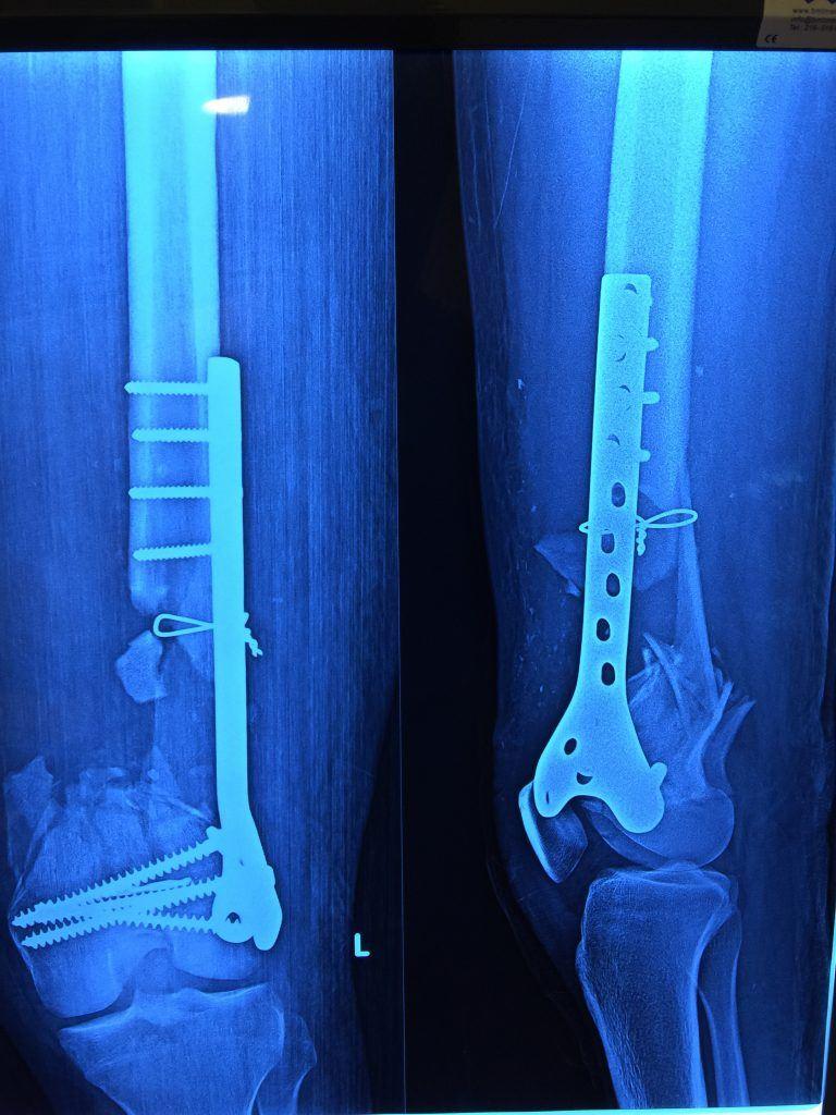 Opr. Dr. Halil Buldu'nun kırık kaynamaması için yaptığı operasyondan bir görüntü. MR altında, kemikle cihazın bağlantısı gözüküyor.