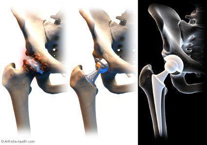 Kalça Protezinin nereye yapılacağını gösteren görsel Opr Dr Halil Buldu