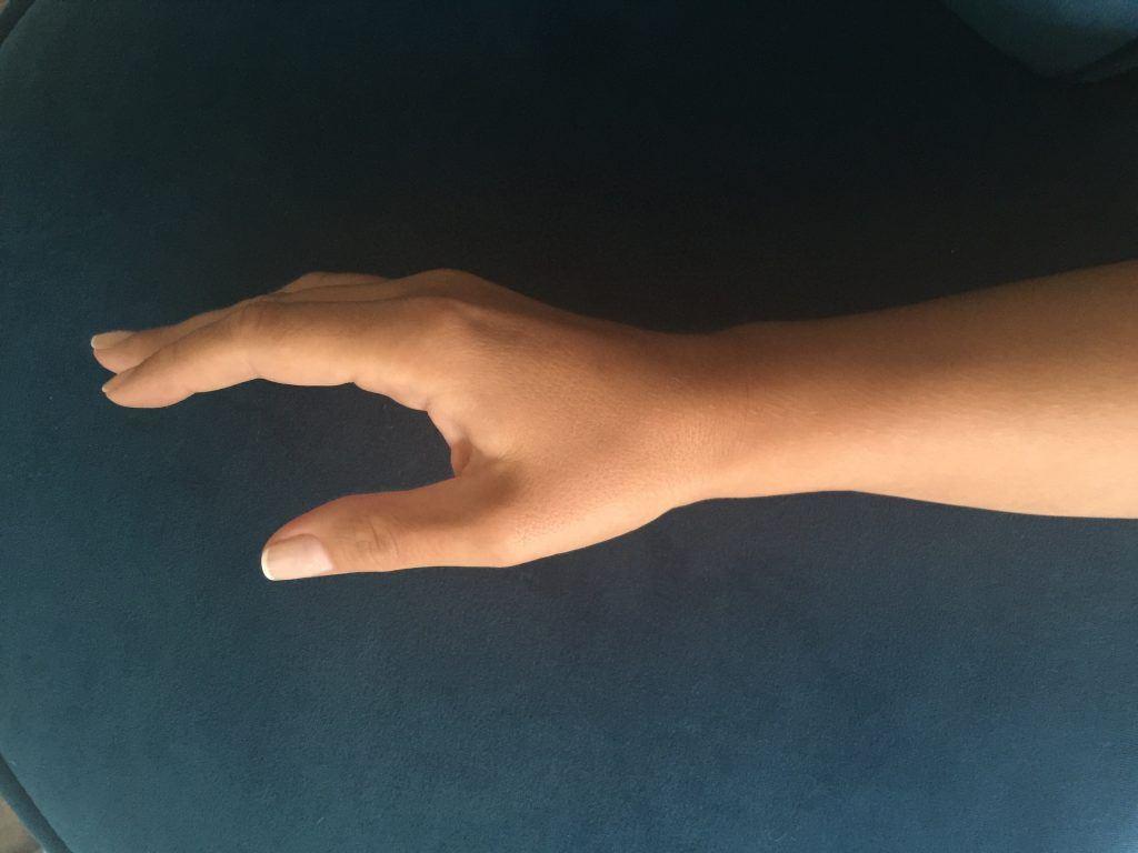 Opr. Dr. Halil Buldu'nun De Quervain Tenosinoviti operasyonu sonrasında oluşan gelişmeyi gösteren bir bandajsız el resmi.