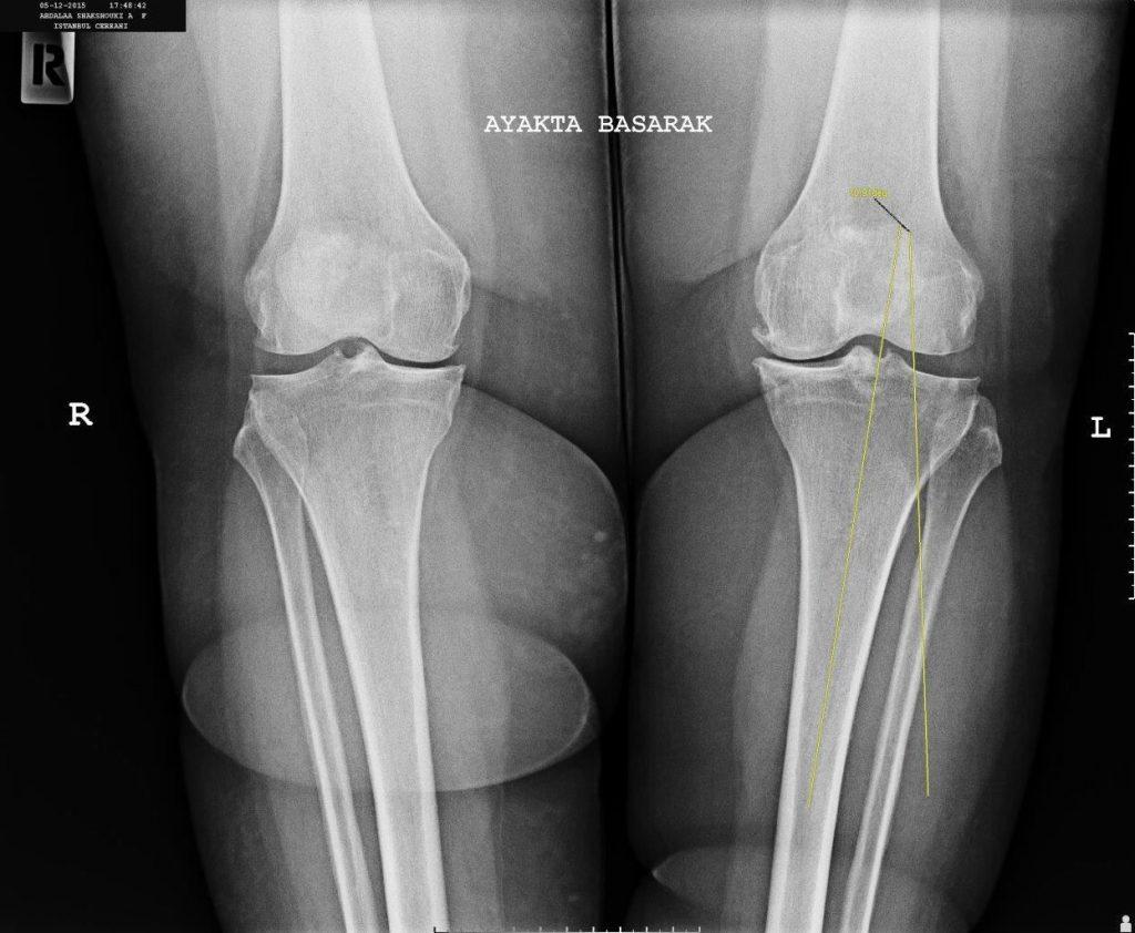 Yüksek Tibial Osteotomi'nin açısını X ray altında çekilmiş bir fotoğrafı - Opr Dr Halil Buldu